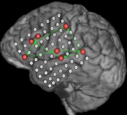 Hjernen med markerte punkter. Illustrasjon.
